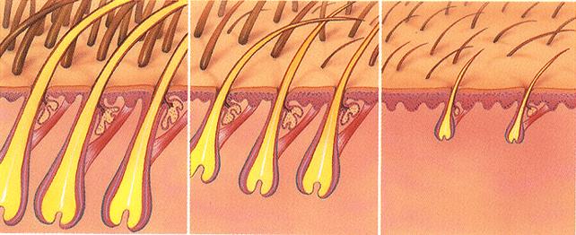 miniaturización del pelo