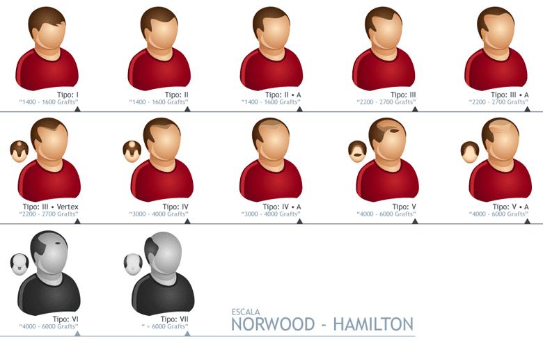 Escala Norwood K Max