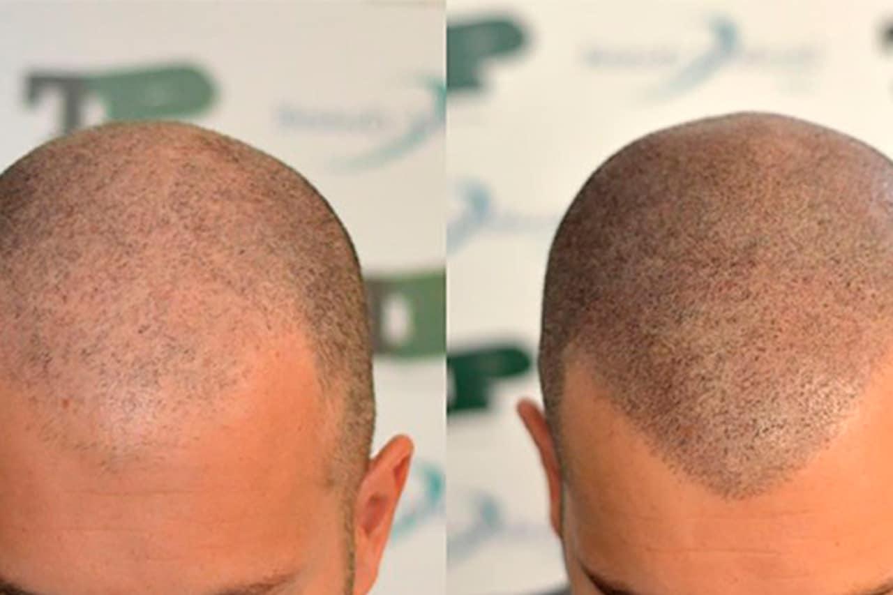 tricopigmentacion