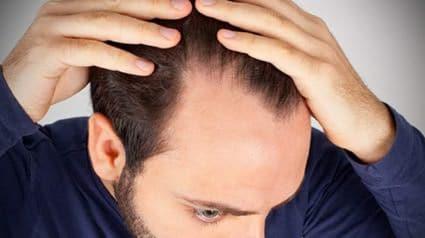 estres-perdida-de-cabello